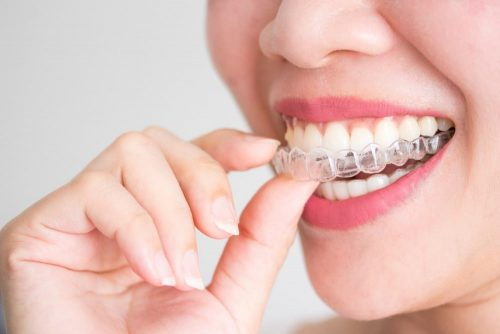 The Importance Of Invisalign Treatment