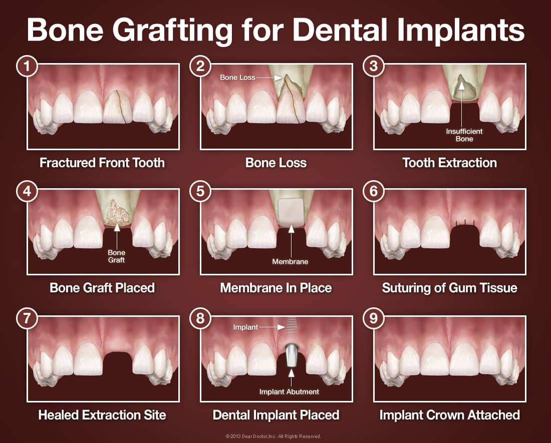 bone grafting for dental implants large