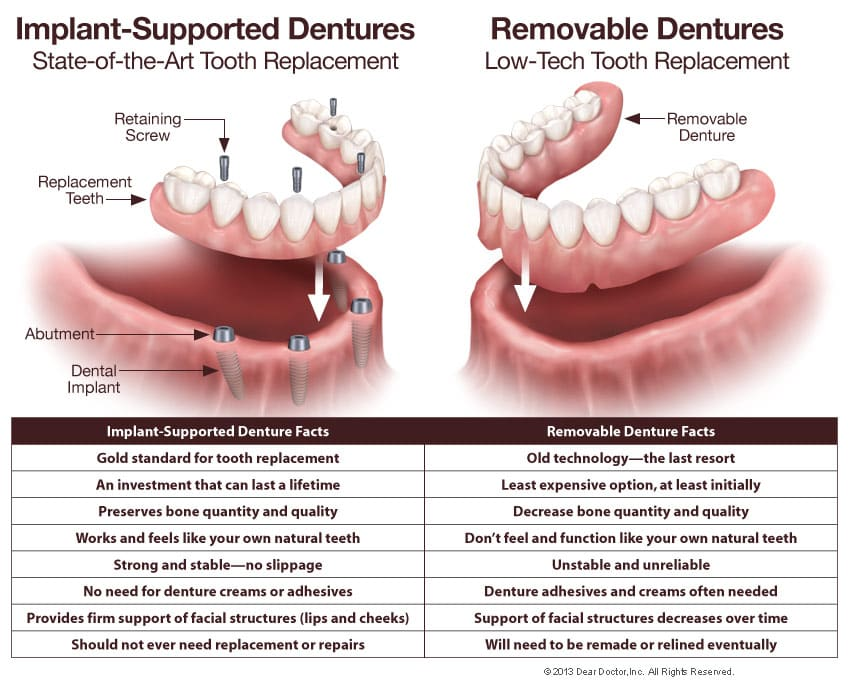 restorative dentistry highland