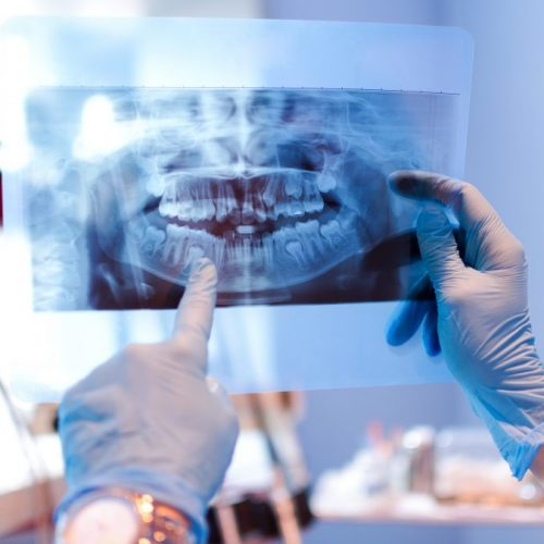 Root Canal Dentist - Know the Facts for This Procedure